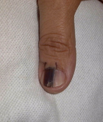 how to fix vertical cracks in nails