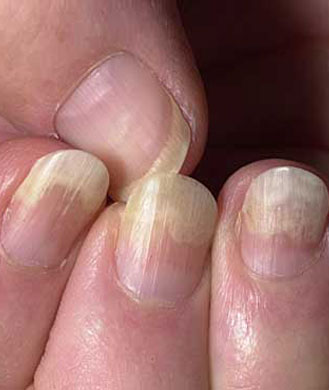 what causes nails to crack horizontally