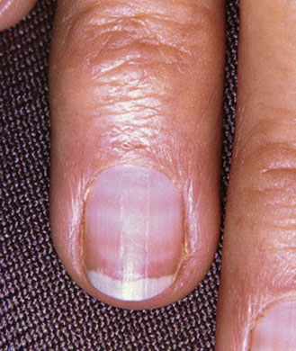 Fingernails and Vitamin Deficiencies | LIVESTRONG.COM