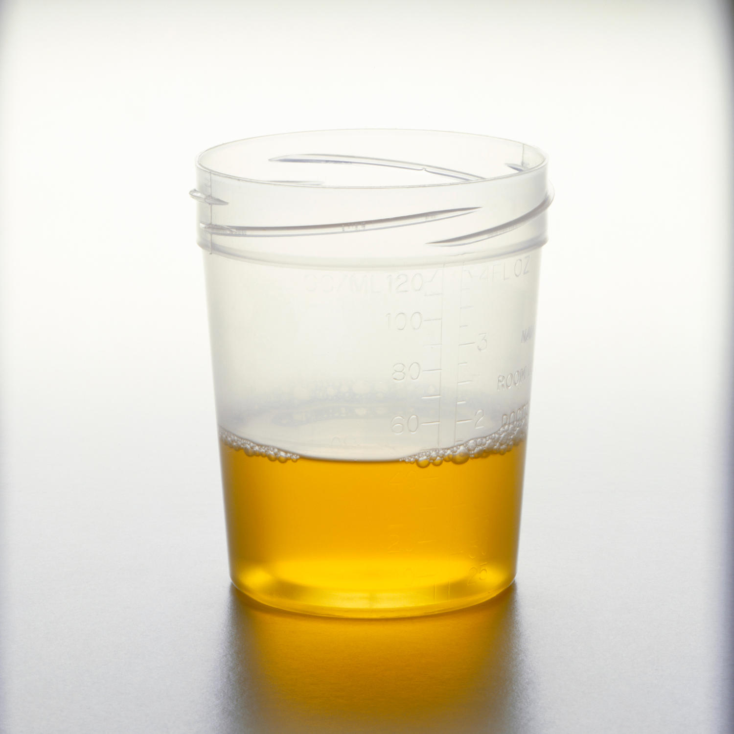 Clinical urine tests