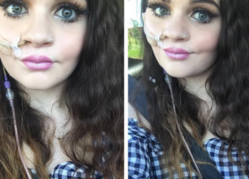 This Woman Won't Let a Feeding Tube Get In the Way of Showing Off Her Makeup Skills