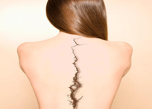 Is Cracking Your Back Safe?