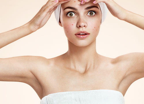 Acne Sufferers Rejoice! More Breakouts Mean Younger-Looking Skin