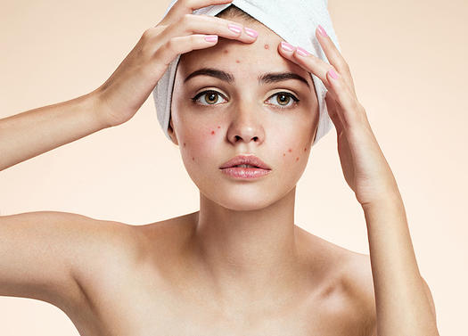 How to Get Rid of Acne | Shape Magazine