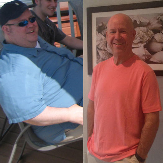 100 Pound Weight Loss Over 40