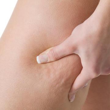 Usted no está solo: la Celulitis, que afecta a casi todas las Mujeres