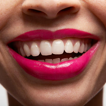 The Quest For Perfect Teeth 10 Must Known Invisalign Tips