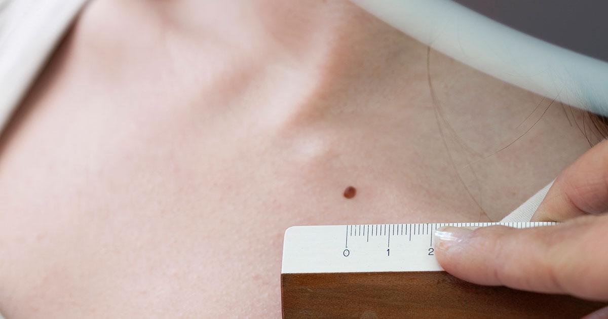 skin-exam-1200.jpg