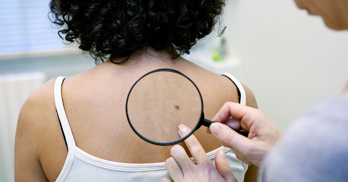 fb-skin-cancer-screening.jpg