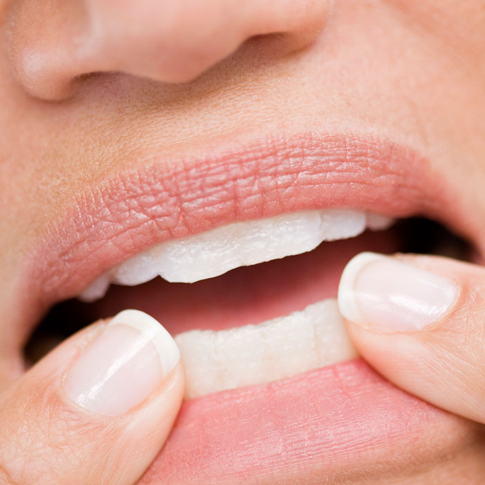 How to Stop Biting Nails: Scary Reasons to End the Bad Habit | Shape ...