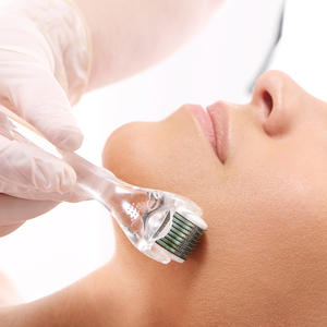 Is Microneedling the New