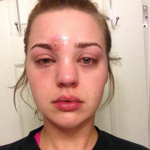 After Hearing This Woman's Horrifying Story, You'll Never Pop Pimples Again