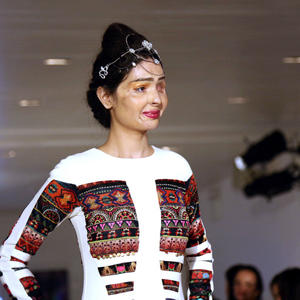 Fearless Teen Survives Acid Attack, Goes On to Own the Runway at New York Fashion Week