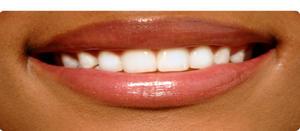 4 Steps to Beautiful Lips