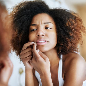Here's What Top Skin Docs Do When They Get a Pimple